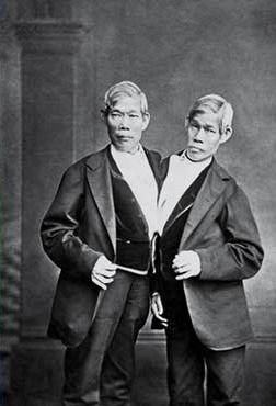 Les jumeaux Chang et Eng Bunker